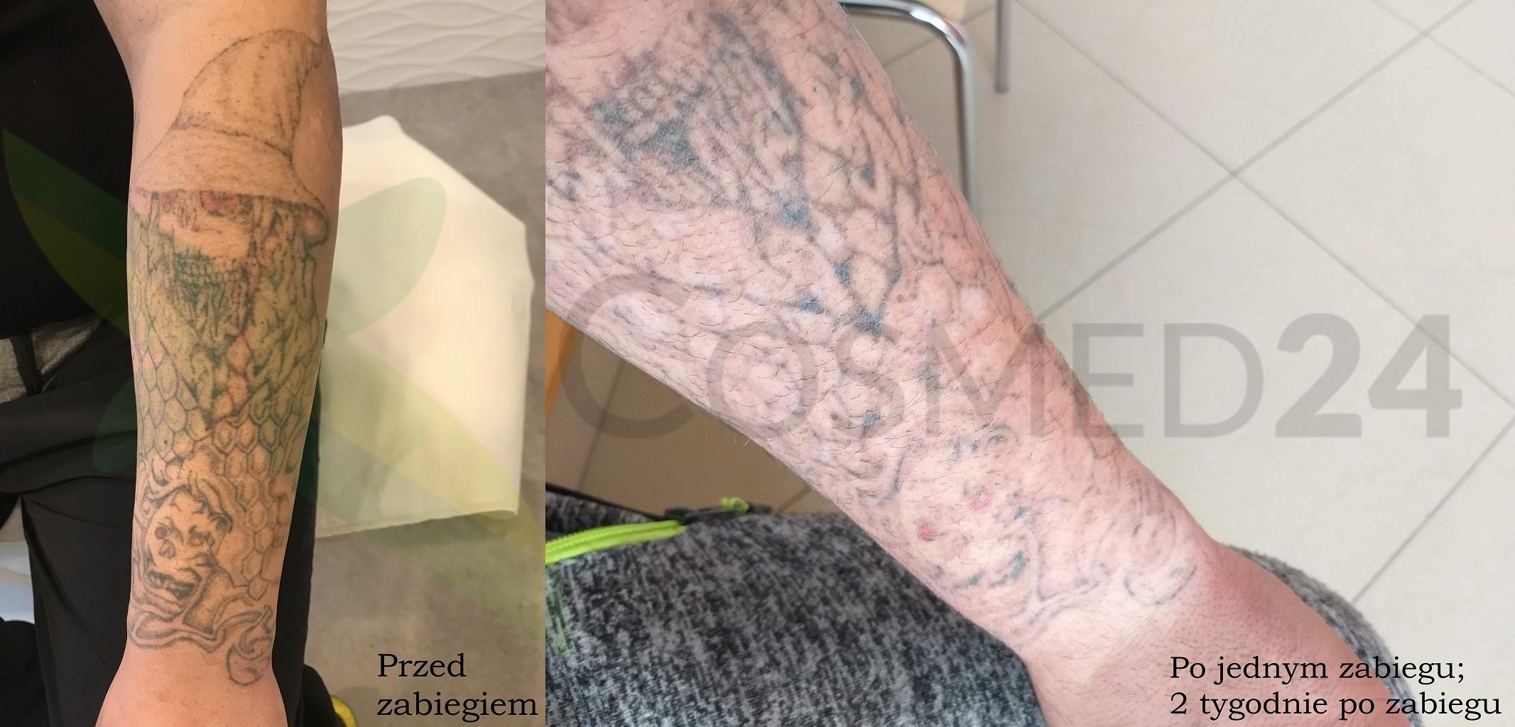 Efekty usuwania tatuażu