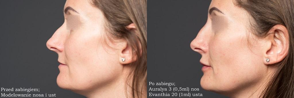 Efekty zabiegowe modelowania ust