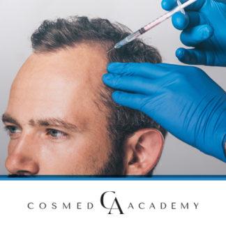 Mezoterapia owłosionej skóry głowy